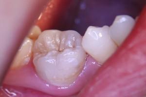 Keramikteilkrone integriert sich fast unsichtbar in den Zahn